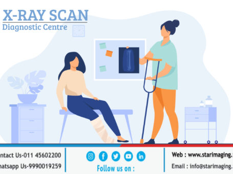 X-Ray cost near me in Delhi NCR – Star Imaging & Path Lab